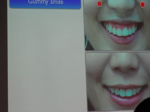 歯科診療におけるアンチエージング (ボトックス、 ヒアルロン酸 編)4