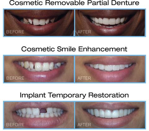インプラント仮歯、部分入れ歯、ブリッジ の代用としての「スナップ オン スマイル」5