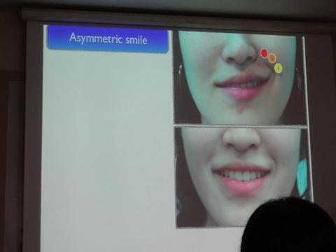 歯科診療におけるアンチエージング (ボトックス、 ヒアルロン酸 編)3