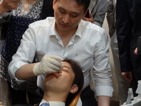 歯科診療におけるアンチエージング (ボトックス、 ヒアルロン酸 編)9