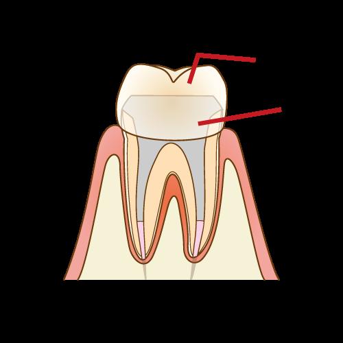 根管治療(歯の神経の治療)の注意点