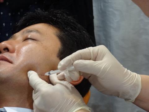 歯科診療におけるアンチエージング (ボトックス、 ヒアルロン酸 編)10