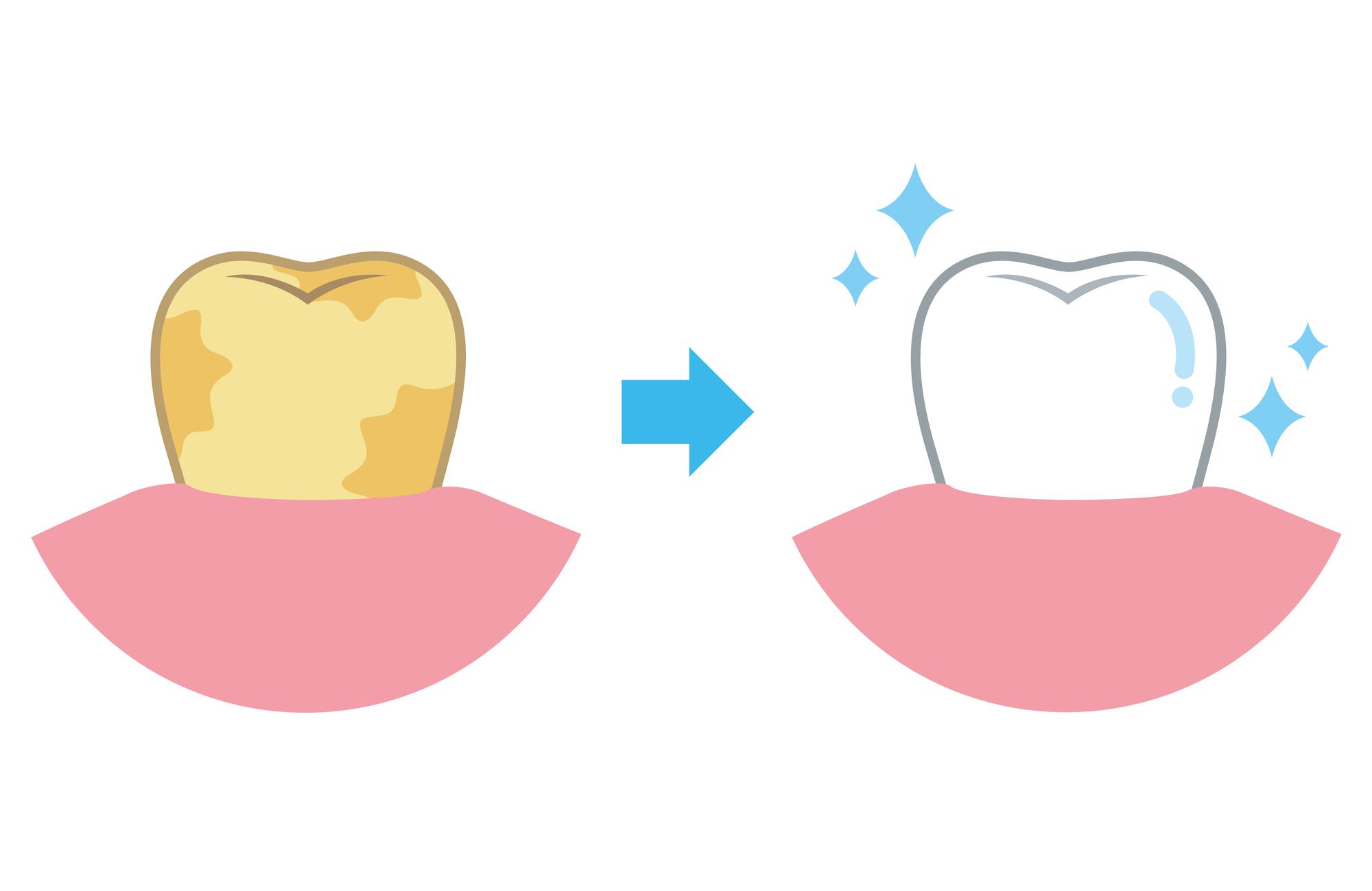 ホワイトニングで歯が白くなる仕組み